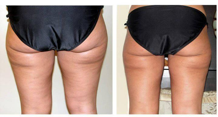It works! Anti cellulite wrap with the apple cider vinegar  #evatornadoblog