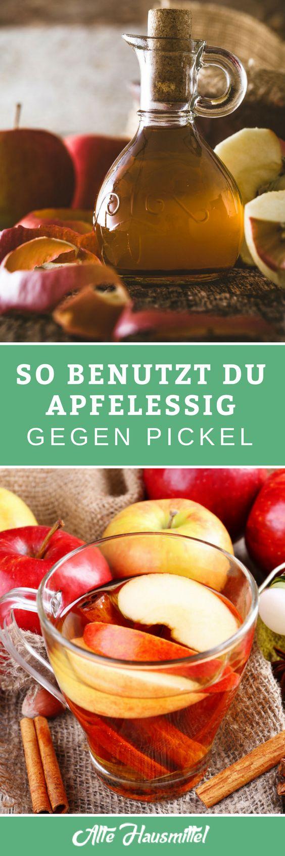Ohne chemische Produkte die Pickel loswerden mit Apfelessig