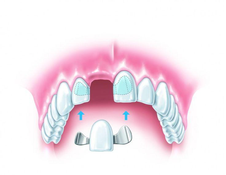What is a #Dental #Bridge ?? How long does it take to get a dental bridge and what is the process? http://www.drjlv.com/specialty-dental-services/dental-bridges-las-vegas/