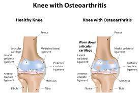 Selamat datang di website obat paru paru basah, pada kesempatan kali ini kami akan memberikan informasi tentang gejala penyakit osteoarthritis.