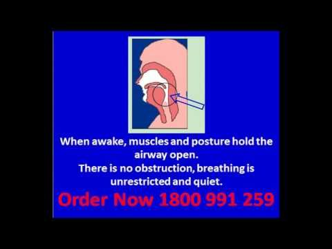 How to Instantly Stop Snoring