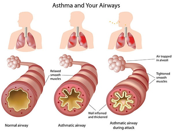 Asthma is caused by inflammation of the airways. These airways are small tubes known as bronchi. They are responsible for carrying air in and out of the lungs, however someone with Asthma's bronchi would be inflamed and more sensitive then it's suppose to.