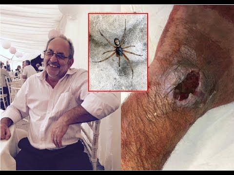 Lorry driver left with massive gaping hole in his hand after he was bitt...