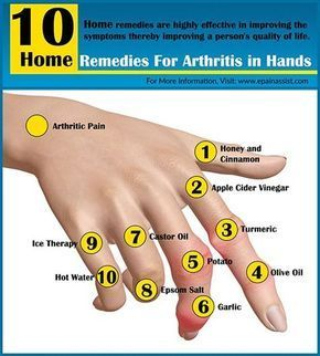 Know the natural home remedies for arthritis in hands, which are available in your very own kitchen. These home remedies are highly effective in improving the symptoms of arthritis of hands thereby improving a person's quality of life.
