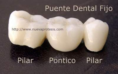 Prótesis dental fija tipo puente de porcelana