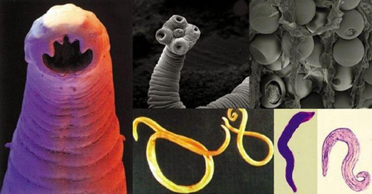 Fakty, ktoré by ste o parazitoch mali bezpodmienečne vedieť. V opačnom prípade hľadanie príčin vašich zdravotných problémov nikam nepovedie.