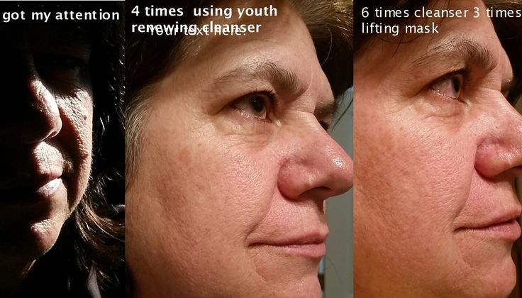 Luminesce Results  in a few days.  amazing