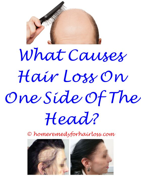 hair loss results - ariana granda hair loss.shampoo causing cat hair loss hair loss boston hair loss on dogs legs spreading on rest of body 7474924738