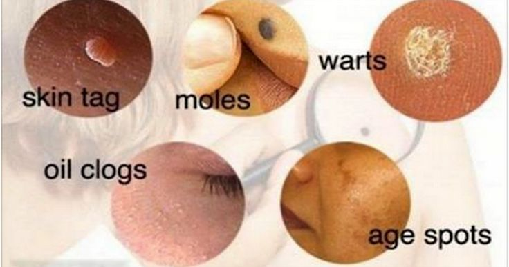 Natural ways to get rid of these nasties