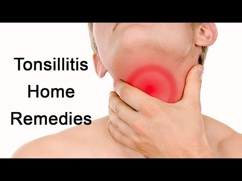 Home Remedies for Tonsillitis - YouTube