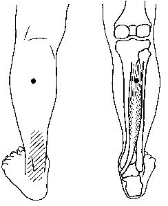 Plantaire Fasciitis, Achillespeesontsteking, Hielpijn, Kuitkramp, Voetpijn