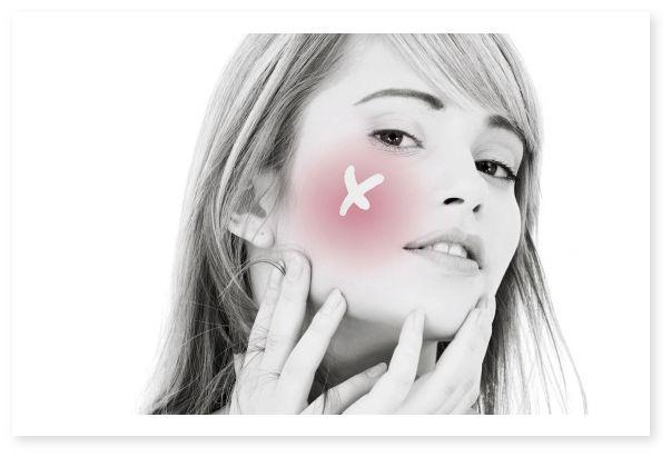 #Cuperoza: evolutie, preventie, remedii naturale.