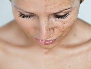 Agua oxigenada quita las manchas de la piel cuidado de las uñas aclarar bellos  e higiene bucal