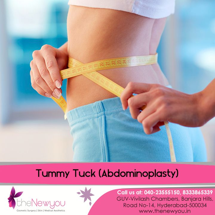 Forget the worries of #abdmoinalskin and muscle toning after #weightloss with the effective #TummyTucksurgery from theNewyou for a perfectly flat abdomen.
