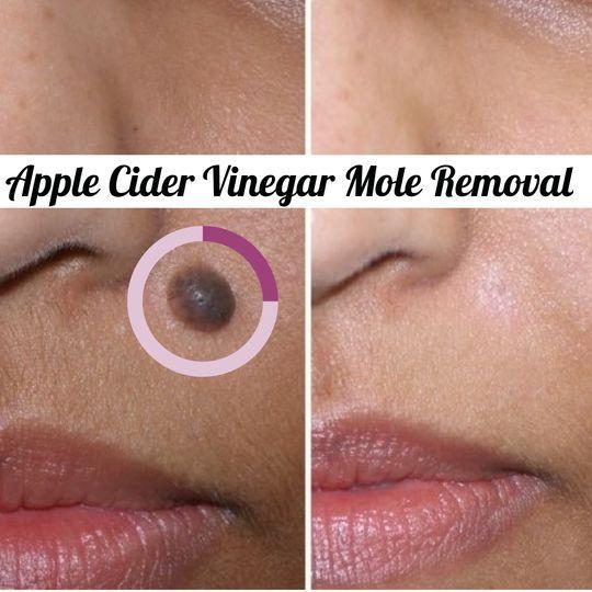 Apple Cider Vinegar Mole Removal | Cute Parents