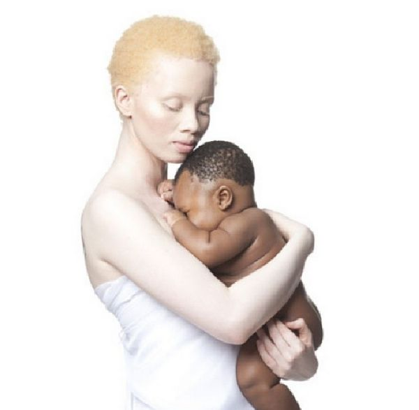 South African model Thando Hopa Black Albinos Celebrating Albino Beauty https://instagram.com/thandohopa/