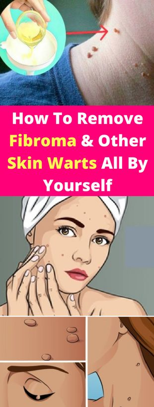 How To Remove Fibroma And Other Skin Warts All By Yourself? - seeking habit