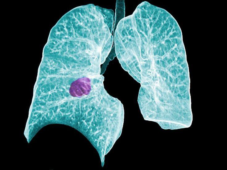 Προγνωστικοί δείκτες στον καρκίνο του πνεύμονα