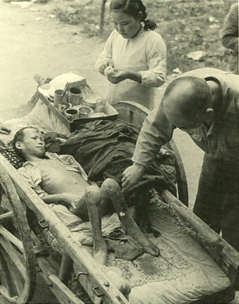 The damage of atomic bomb which Japanese Hiroshima received.   Boy burned on both legs.