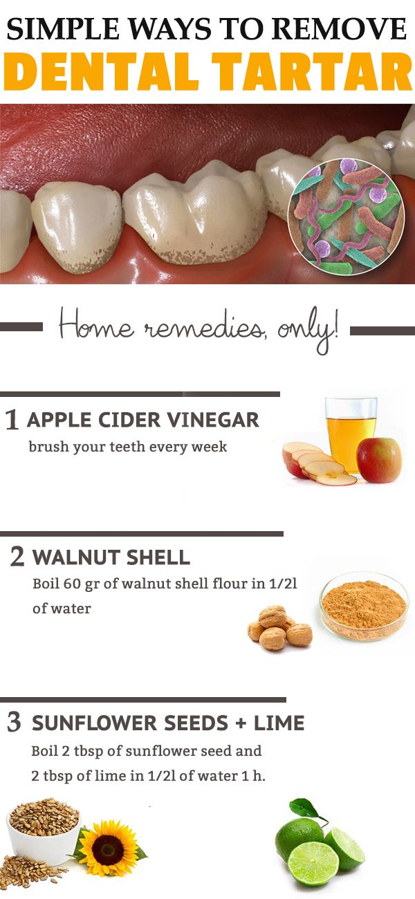 5 minute-remedies that remove your tartar