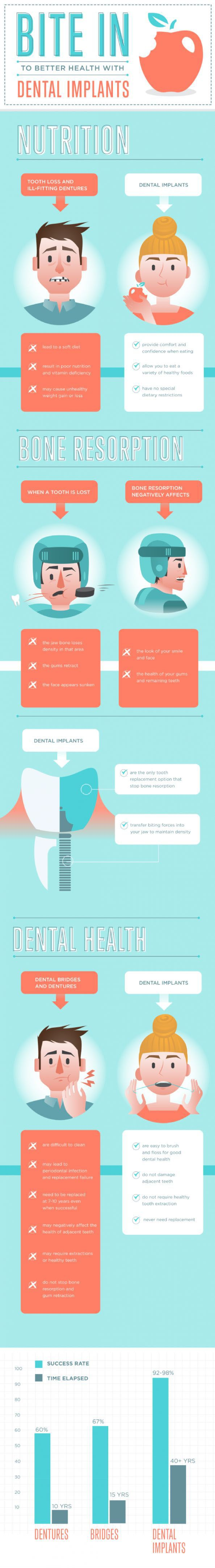 http://www.axisdental.ca/brampton-implant-dentistry.html Take advantage of our same day dental implant and permanent teeth services. Dental implants are now cost $1000 only.