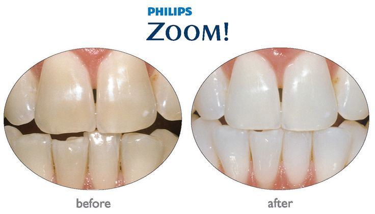 How do teeth whitening products remove stains below the enamel with zoom teeth whitening Explained by Dr. Marcano of Orlando Florida