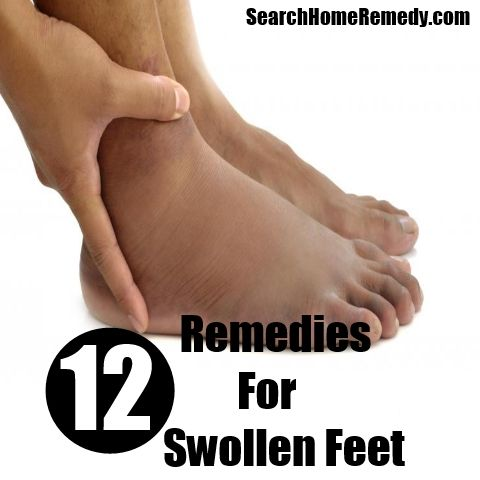 17 Best images about Swollen legs, ankles & feet on ...