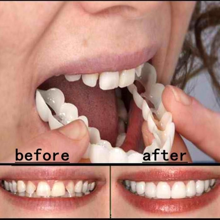 The Original Fake Teeth Temporary False Dental Tooth It Is A Magical Tool Just Because It Works Like Magic Cosmetic Teeth Perfect Smile Teeth Perfect Smile