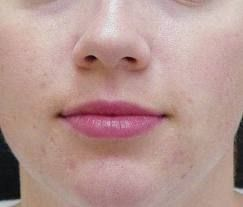 Get rid of cystic acne on chin