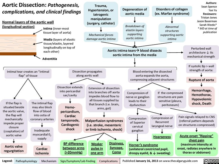 Aortic Dissection: Pathogenesis, complications and clinical findings (calgaryguide.ucalgary.ca).