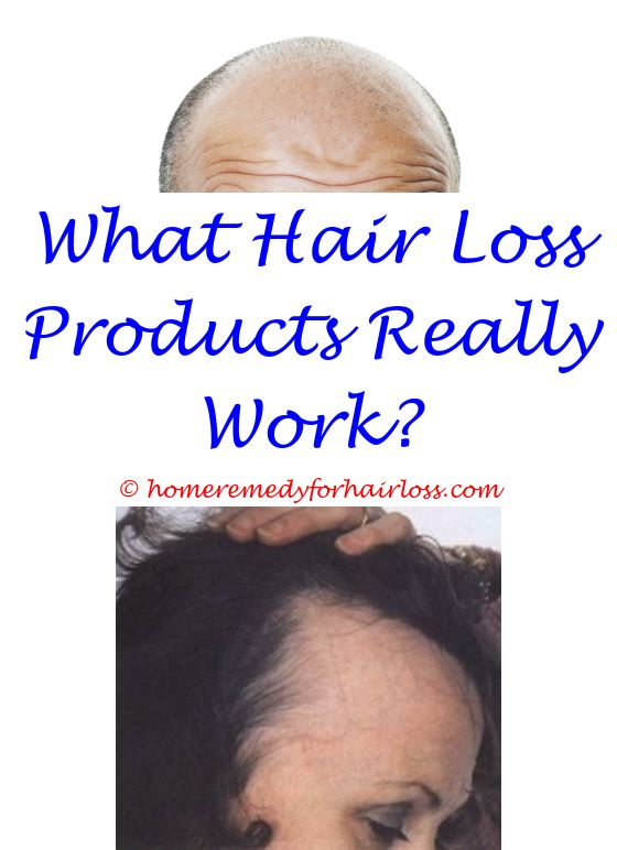 25 Year Old Male Hair Loss Prenatal Vitamins Cause Hair Loss Sun