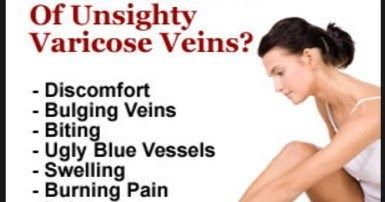 http://ift.tt/2sSJRjl ==>varicose veins treatment / varicose veins treatment at homevaricose veins symptomsvaricose veins treatment : http://ift.tt/2veYFtf  varicose veins symptoms Here are some sneak previews on what you'll find in this report Unlike popular belief common dieting found in other diet books just don't work. You only need this special diet to help improve and lessen the veins discomfort  Forget about paying for expensive gyms for working out your fitness to prevent the…