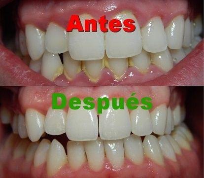Gingivitis o inflamación de las encías. Remedios naturales