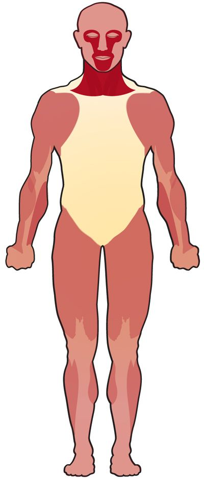 Muscles affected in myasthenia gravis
