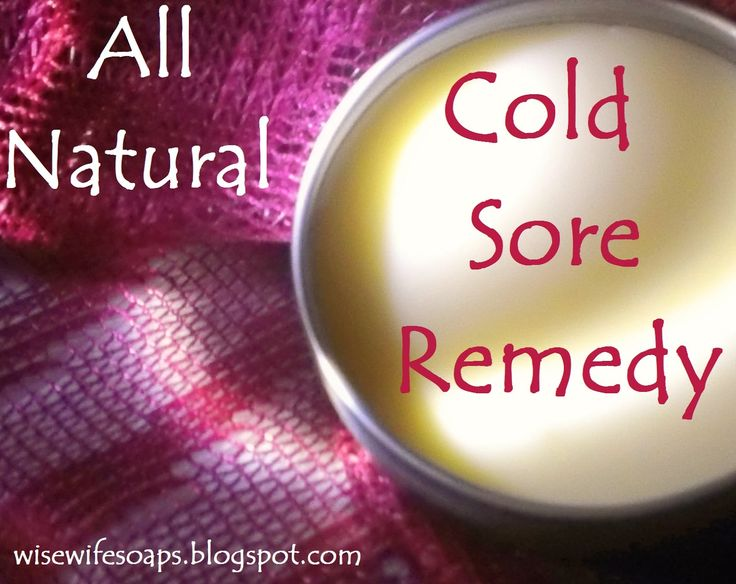 All Natural Cold Sore Remedy - DIY with essential oils. Heal cold sores fast!