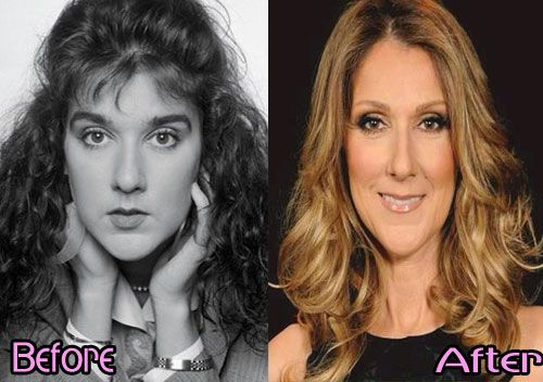 Celine Dion Plastic Surgery Before And After Celebrity