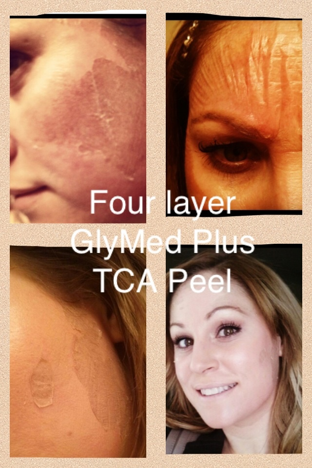 Licensed Master Aesthetician Corinne had a GlyMed Plus TCA peel. This image shows the process during the TCA and the after affects.