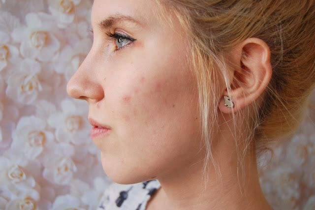 1 5 Easy Ways to Remove Acne Scars and Holes  - Acne is a skin problem that often makes us upset. Plus a scar caused by acne is very dif...