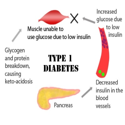 dating someone with type 1 diabetes   diabetes🔥   why do not click to get it dating someone with type 1 diabetes,the secret of nature⭐️⭐️⭐️⭐️⭐️ help today.