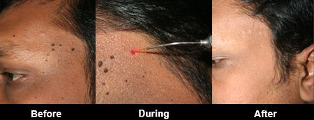 #Laser #Mole #Removal - The mole removal using laser is normally pain free
