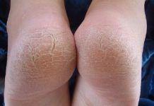 Máte stvrdnutú kožu na rukách a nohách? Môžete mať rakovinu na tomto prekvapujúcom mieste!