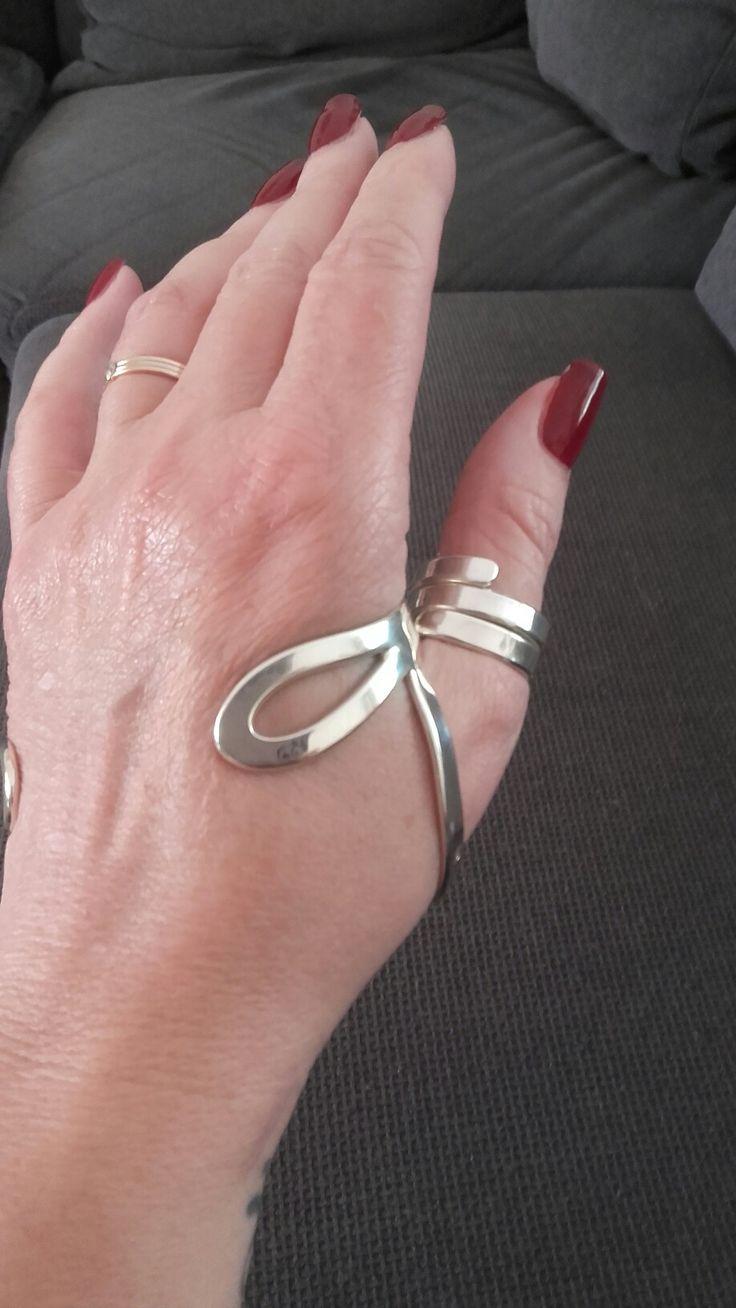 Silver Splint | silver splint - Arthritis hands, Wrist ...
