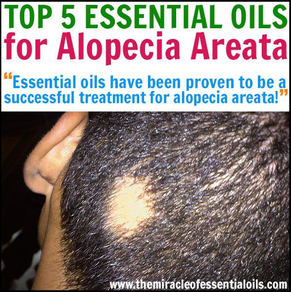8 Best Remedies For Hair Loss Images On Pinterest Bald