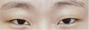 Operasi plastik mata yang dapat membuat mata menjadi lebih jelas, besar dan memperlembut ekspresi wajah: Lateral Canthoplasty