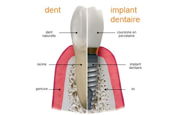 Les parties composantes d'implant dentaire