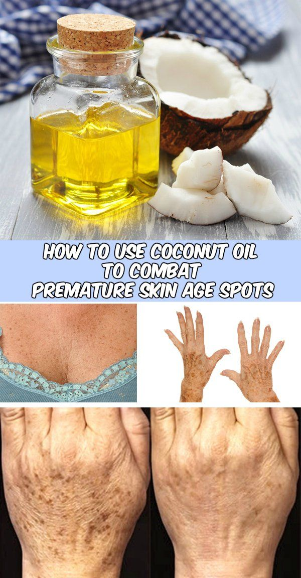 How to use coconut oil to combat premature skin age spots - WeLoveBeauty.org