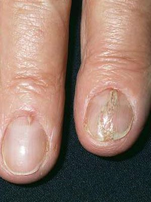 Fingernail disorders, like yellow nail discoloration and splitting nails, can signal health problems. Find out what these and other symptoms could mean.
