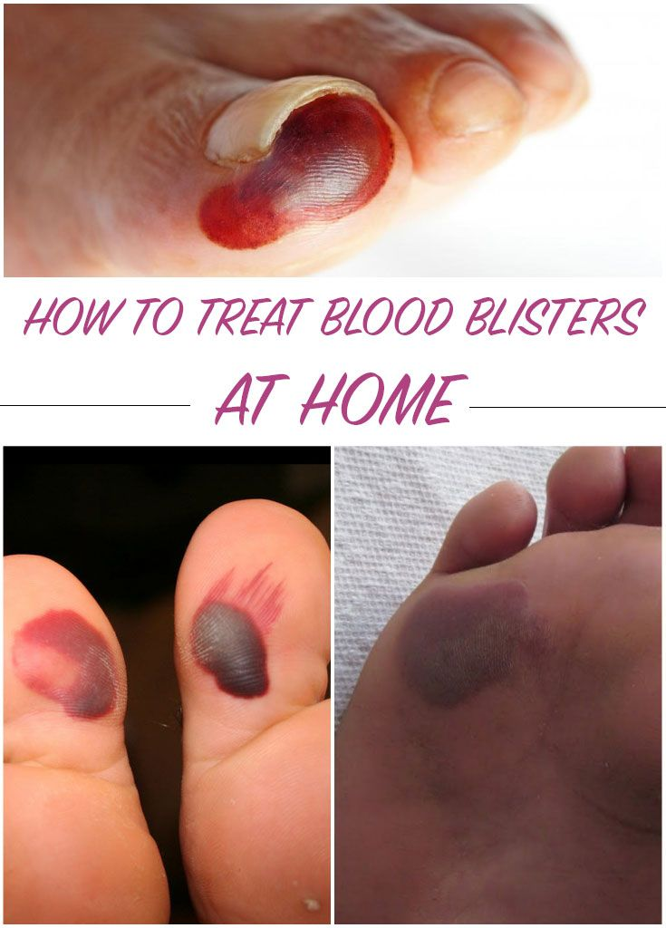 how to treat an open blister on your foot