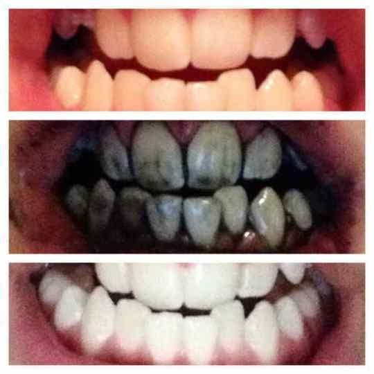 How to whiten your teeth at home with Charcoal   <title> How to whiten your teeth at home with Charcoal   Lifestyle.