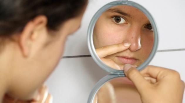 Como eliminar cicatriz de espinha – Minhas Dicas